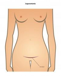 Laparotomie horizontale